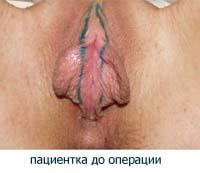 Пластика малых половых губ - до операции