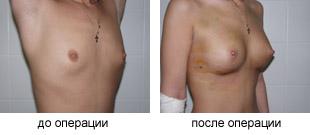 Увеличение молочных желез при их гипоплазии