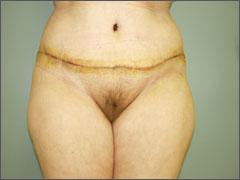 АБДОМИНОПЛАСТИКА - вид после операцией абдоминопластики